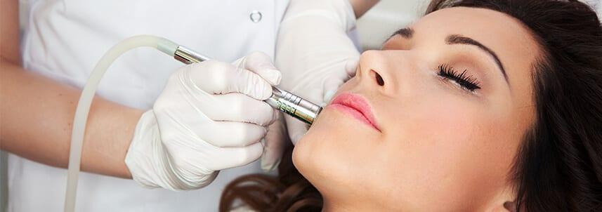 Regents park aesthetics acne scar removal