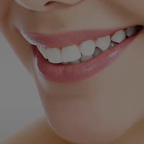 Gummy Smile Treatment North London