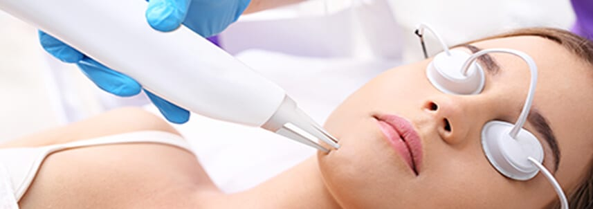 Co2 Laser SKin Resurfacing (1)