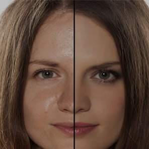 Dermatox Oily skin treatment