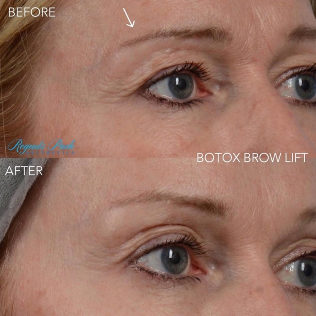 Anti Wrinkle Injections North London | Regents Park Aesthetics